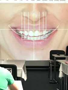 DSD Digital Smile Design